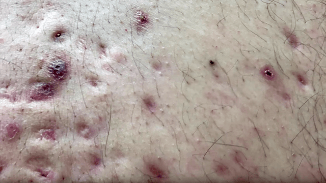 Blackhead On Back This Dude's...