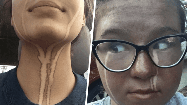 14 Very, Very, Very Unfortunate Spray Tans People Were Cool Enough To Share