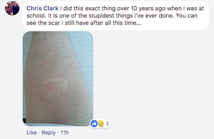 Mom posts gruesome photos of daughter's arm to warn parents about 'deodorant challenge.'