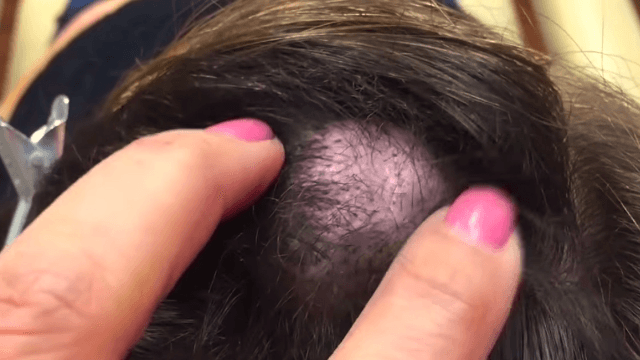 This lady let her head cyst grow for 20 years before sacrificing it to Dr. Pimple Popper.