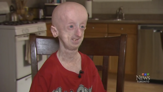 Teen with rapid aging disease celebrates 19th birthday against the odds, gives surprisingly mature advice.