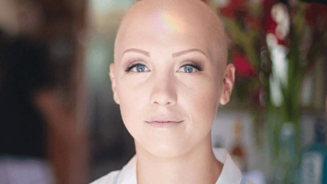 Bride with alopecia explains why it was important for her to be bald on her wedding day.