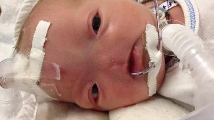 Baby boy born in Alabama with no nose due to rare condition.