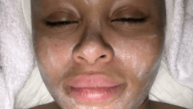 Blac Chyna uses Snapchat to chronicle the worst facial of her life.