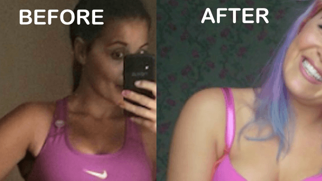 Woman's before/after pics of eating disorder recovery prove 'happiness isn't a size.'