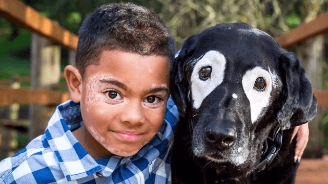 Little boy meets dog that has the same skin condition he does and now they're best friends.