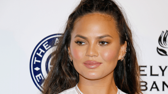 Chrissy Teigen responds to articles claiming she's had extensive plastic surgery.