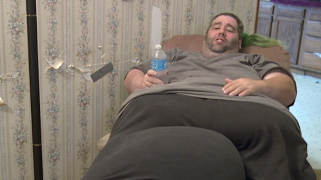 Guy has 80lb mass removed from scrotum after doctors said he just needed to lose weight.