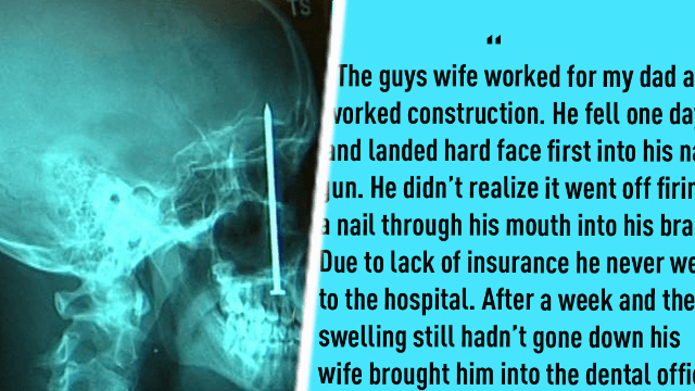 Doctors reveal death-defying cases that made them ask 'how are you still alive?'