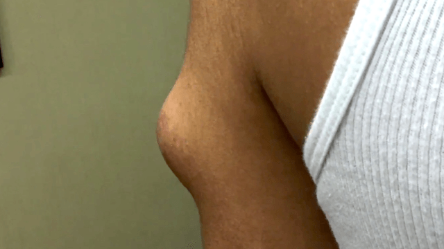 Even Dr. Pimple Popper didn't know what this huge lump was until it squirted all over her.