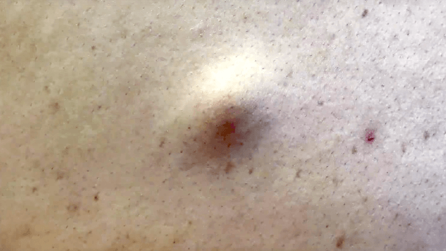 Dr. Pimple Popper tackles a cyst on the back that's way bigger than it looks.