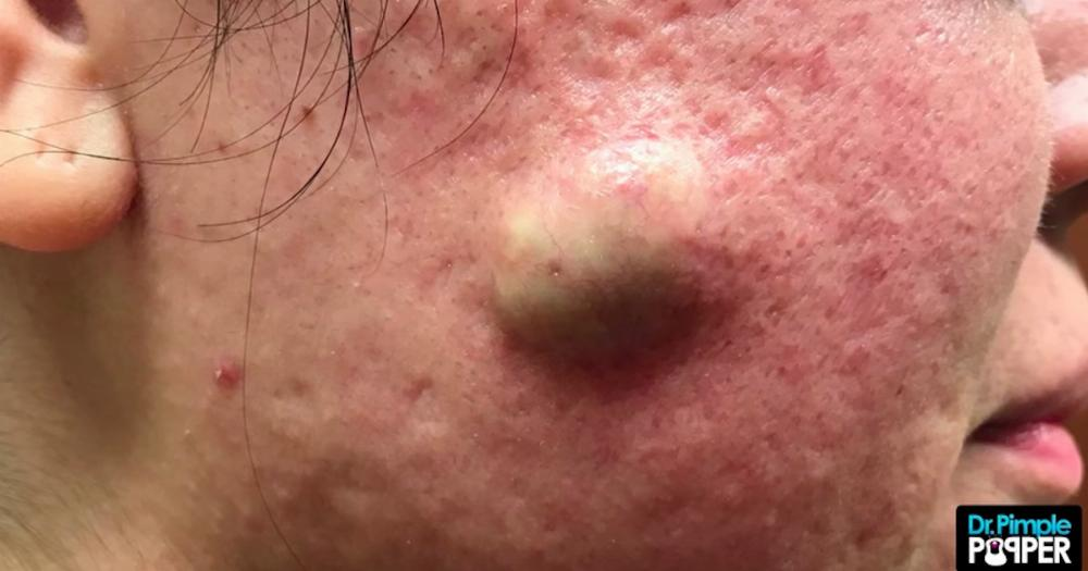 Dr  Pimple Popper squeezes cheesy white gold from an enormous cyst