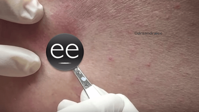Dr. Pimple Popper goes to town on this patient's 'blackheads from heaven.'