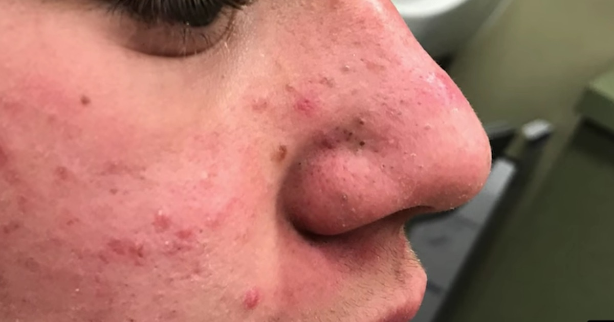 Images of Popping Blackheads 2019 - #rock-cafe