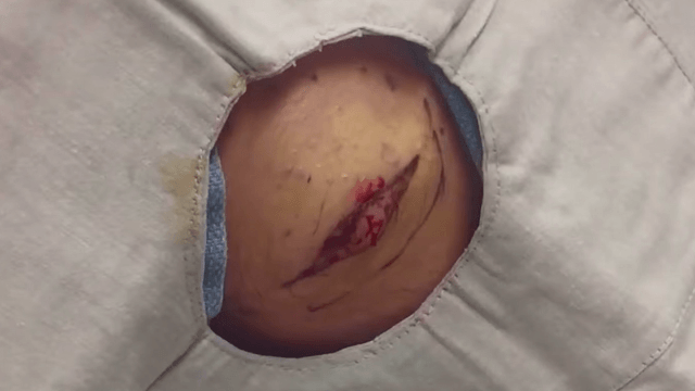 Dr. Pimple Popper cheerfully pops out a huge lipoma on a guy's butt.