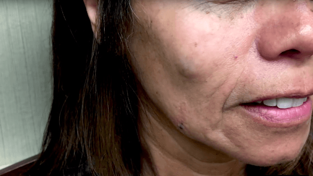 Dr. Pimple Popper squeezes a woman's cheek cyst and it just keeps coming and coming.