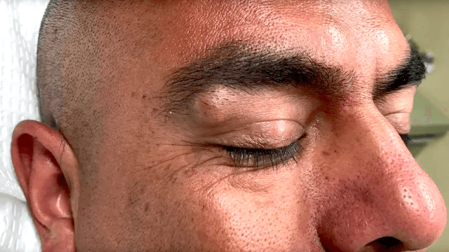 Dr. Pimple Popper squeezes a plump cyst on a guy's eyebrow and magic comes out.