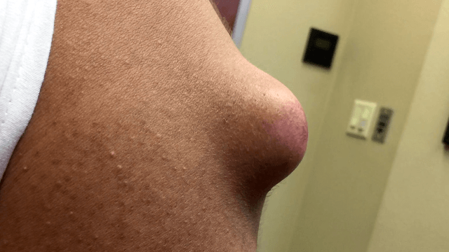 Dr. Pimple Popper pops a huge 'doorknob' of an arm cyst and it comes out beautifully.
