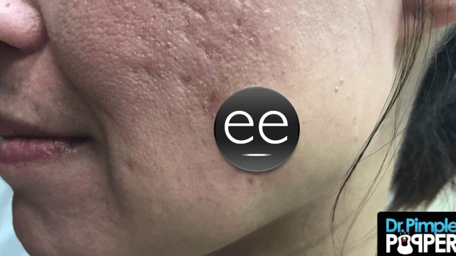 Dr. Pimple Popper squeezes gushy goodness out of a huge cyst on this woman's cheek.
