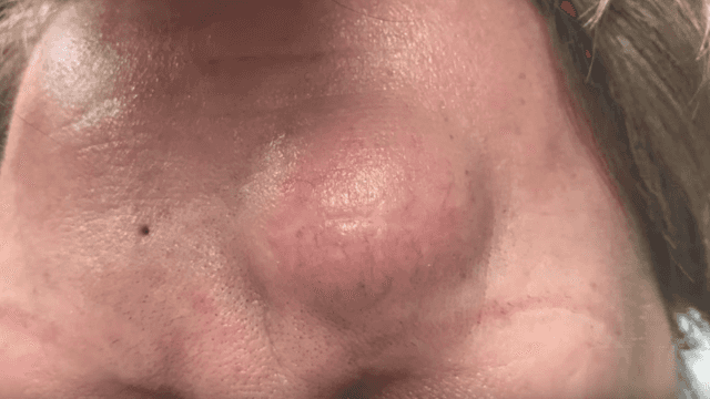 Dr. Pimple Popper cracks an 'egg yolk' lipoma from her patient's forehead.