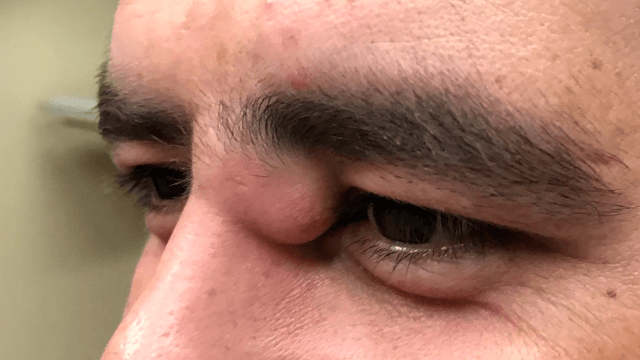 Dr. Pimple Popper performs a 'life-changing' pop on a juicy cyst right by this guy's eye.