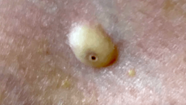 Dr. Pimple Popper easily pops out a gooey 'evil eye' cyst.