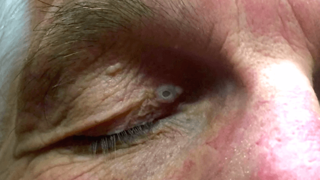Try not to cringe watching Dr. Pimple Popper squeeze out this huge blackhead on a guy's eyelid.
