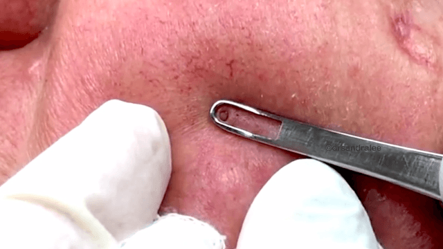 Dr. Pimple Popper goes back to her roots, popping out perfect blackheads on a man's face.