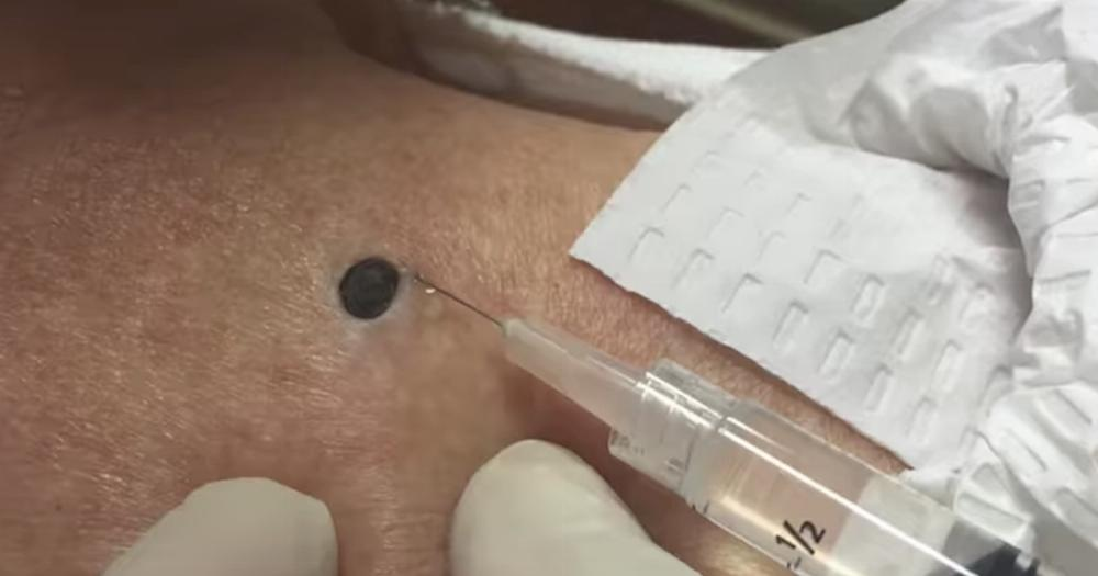 Dr Pimple Popper Digs Out An Enormous Dilated Pore That