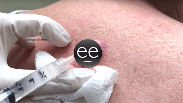 Dr. Pimple Popper drains a truly gnarly inflamed cyst on this woman's back.