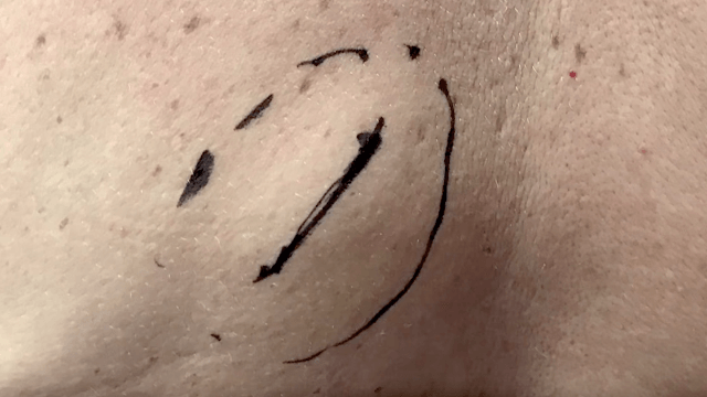 It took a while for Dr. Pimple Popper to pop this lipoma. But when she finally did, boy howdy.