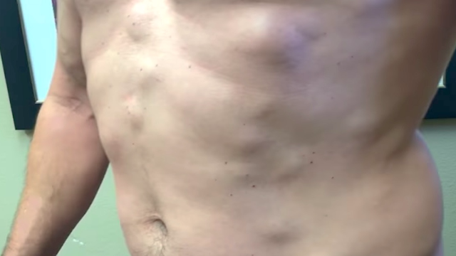 Dr  Pimple Popper dubs her new patient Lipoma Man and you can