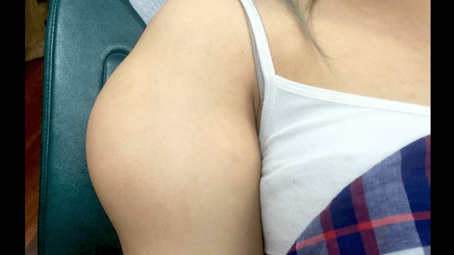 Dr. Pimple Popper confirms this lump is not a muscle before popping it out of a woman's arm.
