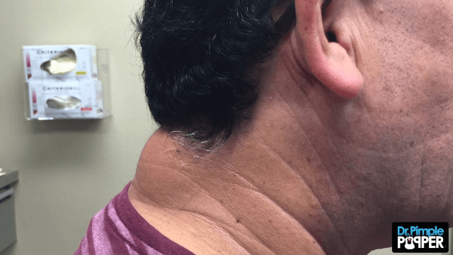 Dr. Pimple Popper showed off a new toy pulling a huge lipoma from the back of a guy's neck.