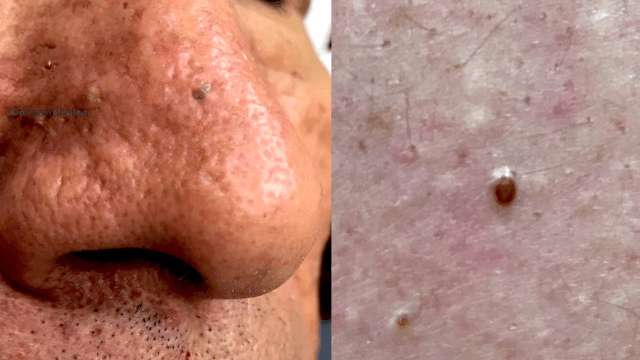 Dr. Pimple Popper takes on milia, blackheads, and skin tags in a jam-packed popping medley.