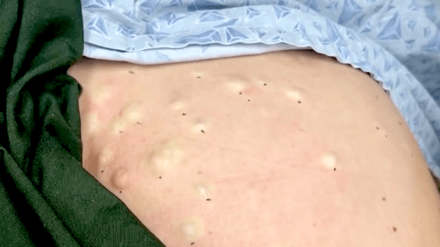 Start the healing by watching Dr. Pimple Popper squeeze out more of Momma Squishy's gooey cysts.
