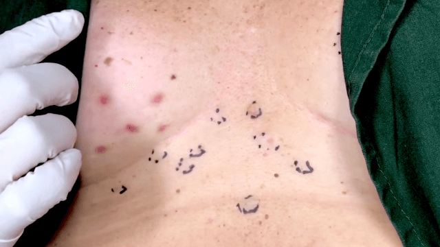 Dr. Pimple Popper brings 'Momma Squishy' back to squeeze some more gold from her chest.