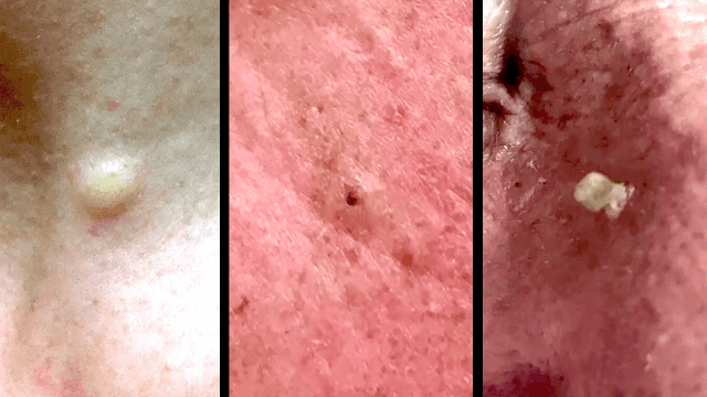 Dr. Pimple Popper celebrates Mother's Day with the momma of all popping medleys.