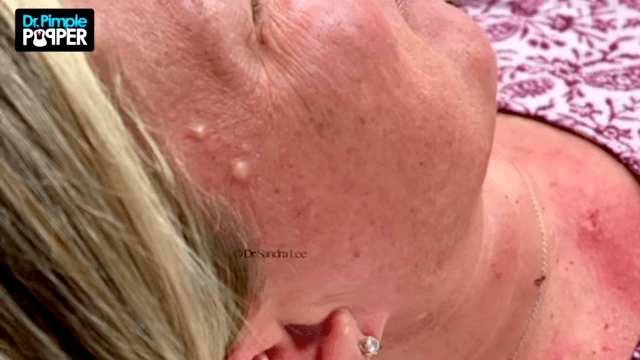 'Dr. Pimple Popper and the Mystery Of This Woman's Multiplying White Growths.'