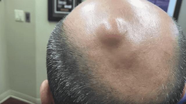 Dr  Pimple Popper pops a 'lima bean' pilar cyst on a patient's scalp