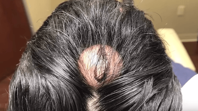 Dr. Pimple Popper pops out this 'horn' cyst from a patient's scalp.