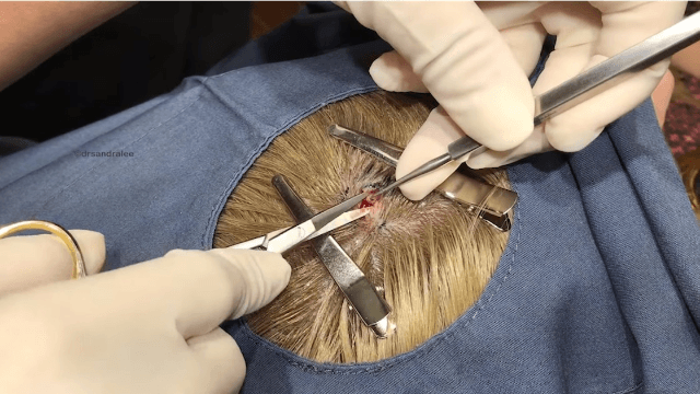 Dr. Pimple Popper digs up a perfect little 'poo emoji' cyst from a woman's scalp.