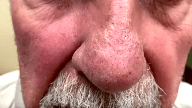 Dr. Pimple Popper pries out a bunch of hairlike 'filaments' from this man's nose.