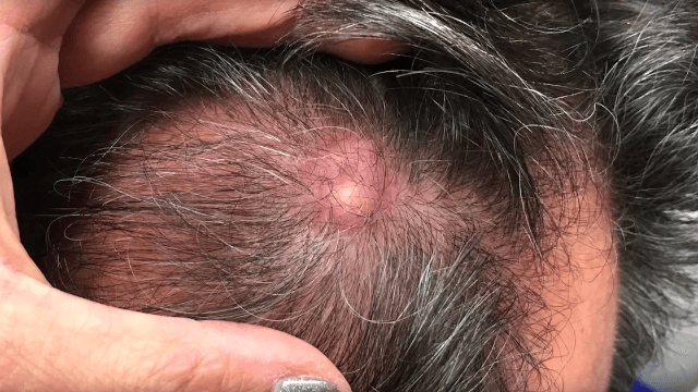 Dr. Pimple Popper pops something that looks exactly like a snowman from a man's head.