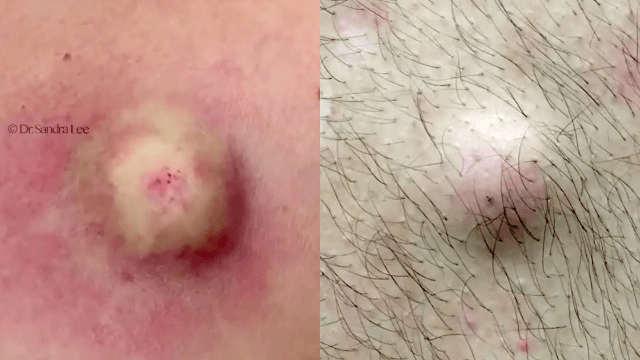 Dr. Pimple Popper has begun counting down her top 10 cysts of 2016, and these are some good'uns.