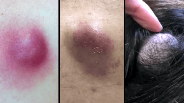 Dr. Pimple Popper's top three abscesses of 2016 will fill that gaping hole in your soul.