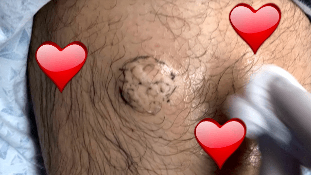 Dr. Pimple Popper celebrates Valentine's by falling in love with this adorable gooey lipoma.