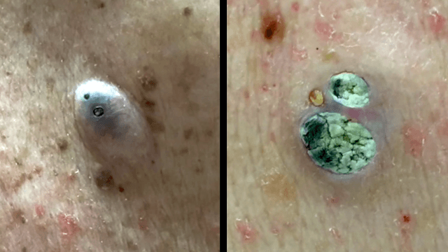 Dr. Pimple Popper's top 10 blackheads, whiteheads, and dilated pores of 2016 are amazing.