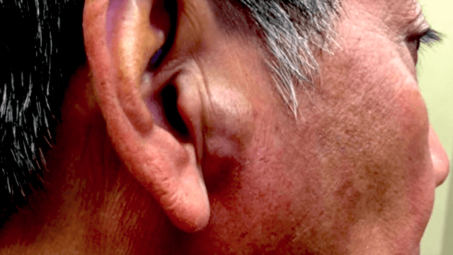 This growth was pressing on a guy's ear until Dr. Pimple Popper squeezed it away.