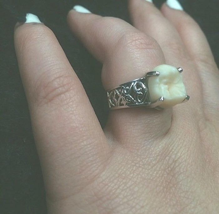 This woman's engagement ring has part of her fiancé's body in it. Guess which part!